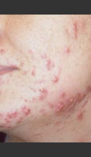 Before Photo for Quanta Eterna IPL Acne Treatment #79 -  - Prejuvenation