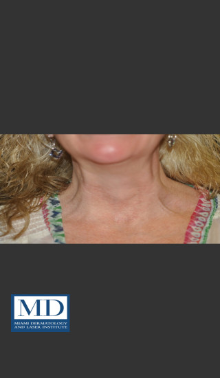After Photo for Neurotoxin of Neck 132 - Jill S. Waibel, MD - Prejuvenation