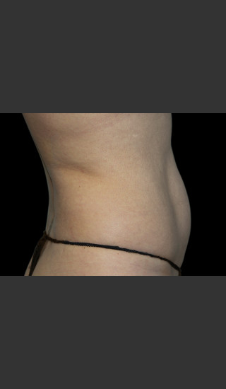 After Photo for Body Contouring Treatment #118 -  - Prejuvenation