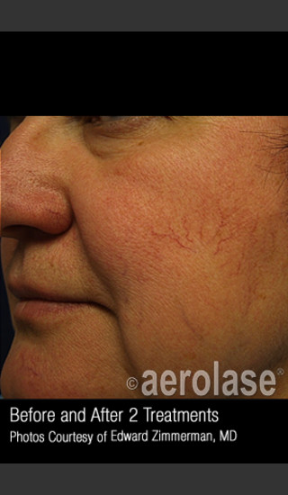 Before Photo for Treatment of Facial Blood Vessels #323 -  - Prejuvenation