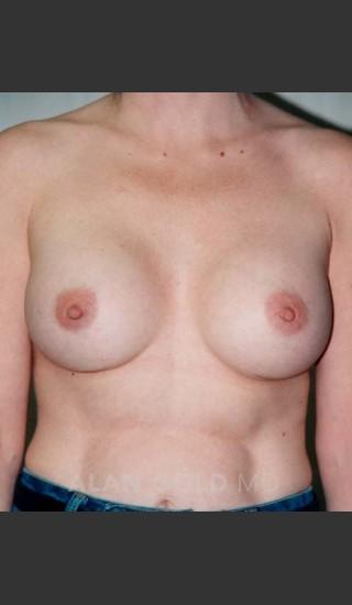 After Photo for Breast Augmentation 582 - Alan Gold MD - Prejuvenation