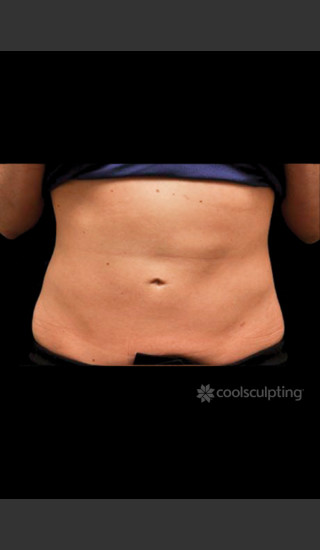 After Photo for CoolSculpting on Woman's Lower Abdomen -  - Prejuvenation