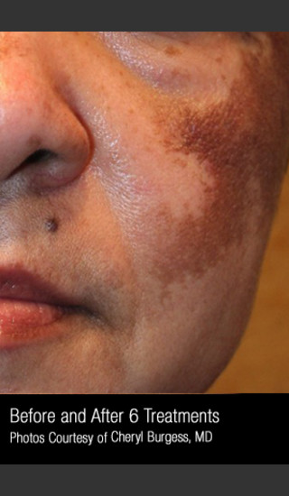 Before Photo for Treatment of Melasma #319 -  - Prejuvenation