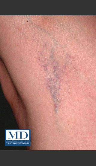 Before Photo for Sclerotherapy Treatment 140 - Jill S. Waibel, MD - Prejuvenation