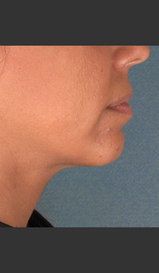 After Photo for Kybella Treatment 34 Year Old Female -  - Prejuvenation