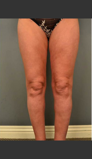 After Photo for Circumferential Liposuction #46 - Dr. David Amron - Prejuvenation