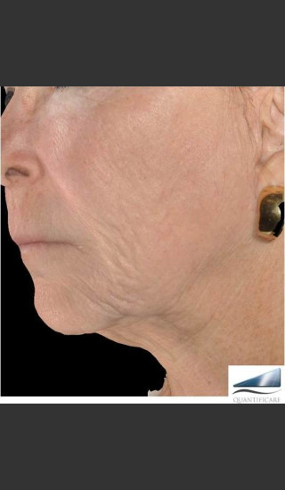 After Photo for Infini Rhytides and Facial Laxity Treatment -  - Prejuvenation