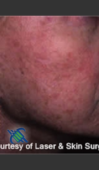 Before Photo for Treatment of Right Cheek Pigmentation - Roy G. Geronemus, M.D. - Prejuvenation