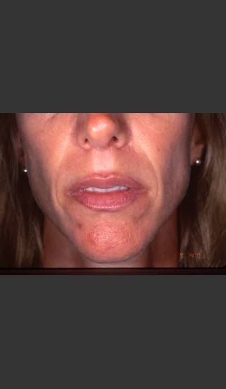 After Photo for Treatment of Permanent Lip Liner - Roy G. Geronemus, M.D. - Prejuvenation