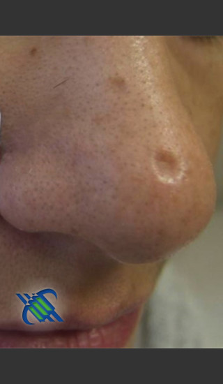 Before Photo for Treatment of Nose Acne Scar - Roy G. Geronemus, M.D. - Prejuvenation