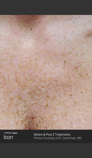 Before Photo for Skin Revitalization of Chest Using Icon -  - Prejuvenation