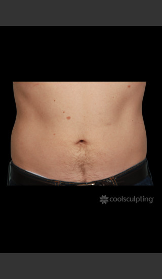 After Photo for CoolSculpting on Man's Abdomen -  - Prejuvenation