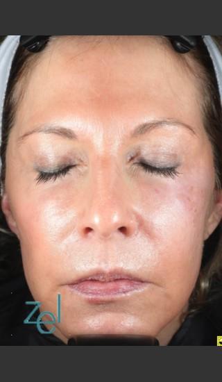 After Photo for Treatment of Left Side Hyperpigmentation - Brian D. Zelickson, M.D. - Prejuvenation