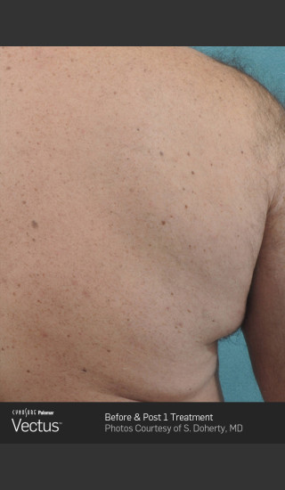 After Photo for Hair Removal of Back with Vectus -  - Prejuvenation