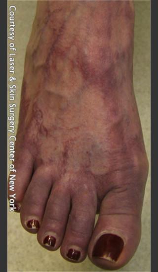 Before Photo for Treatment of Foot Leg Veins -  - Prejuvenation