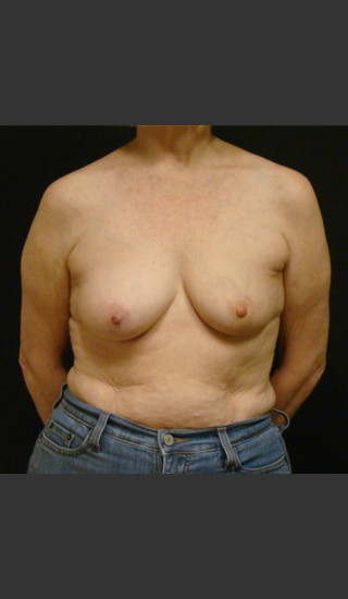 Before Photo for Breast Augmentation with a Lift - Gallaher Plastic Surgery & Spa MD - Prejuvenation