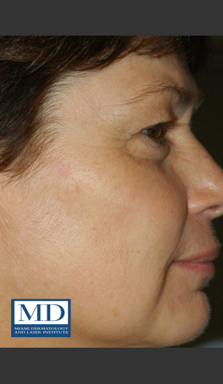 After Photo for Brown Spots Treatment 114 - Jill S. Waibel, MD - Prejuvenation