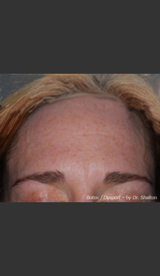 Before Photo for Treatment of Forehead Creases - Ron M. Shelton, M.D. - Prejuvenation