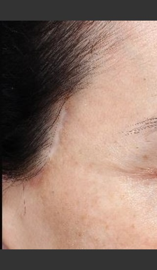 Before Photo for Scar on right and left temple at hairline  - Paul M. Friedman, M.D. - Prejuvenation