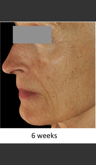 After Photo for DefenAge Skincare Clinical Power Trio - Amy Forman Taub, MD - Prejuvenation