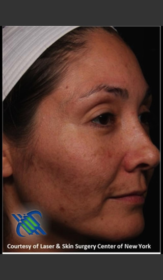 Before Photo for Treatment of Melasma on the Right Side - Roy G. Geronemus, M.D. - Prejuvenation