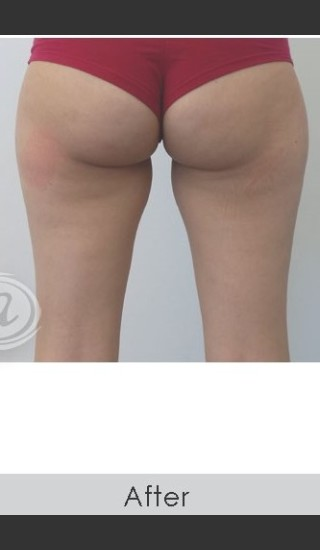 After Photo for CoolSculpting+ for Banana Roll (Under Buttock Roll) - Annie Chiu, MD - Prejuvenation