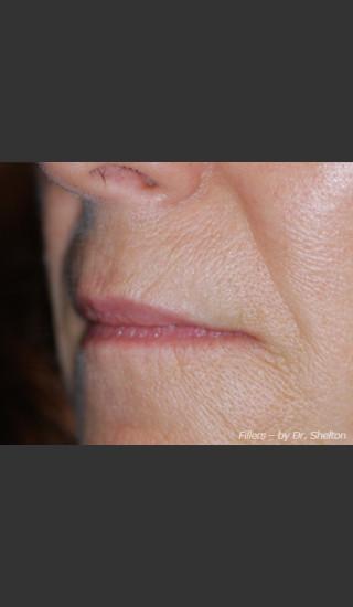 Before Photo for Treatment of Perioral Wrinkles - Ron M. Shelton, M.D. - Prejuvenation