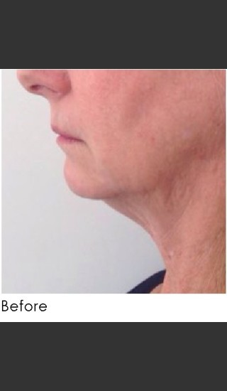 Before Photo for Kybella and Filler for Jawline Definition  - Annie Chiu, MD - Prejuvenation