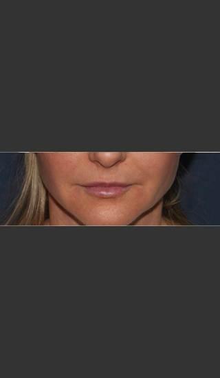 After Photo for Lip Augmentation - Mitchel P. Goldman M.D. - Prejuvenation