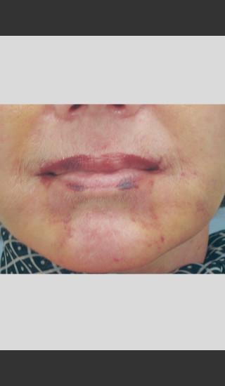 After Photo for Vbeam Laser of Post-operative Bruising -  - Prejuvenation
