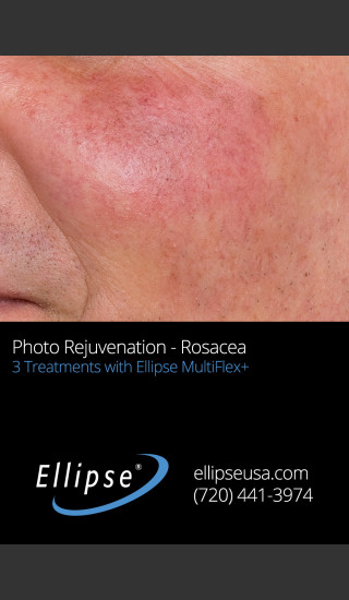 Before Photo for Before and After 3 Treatments of Rosacea -  - Prejuvenation