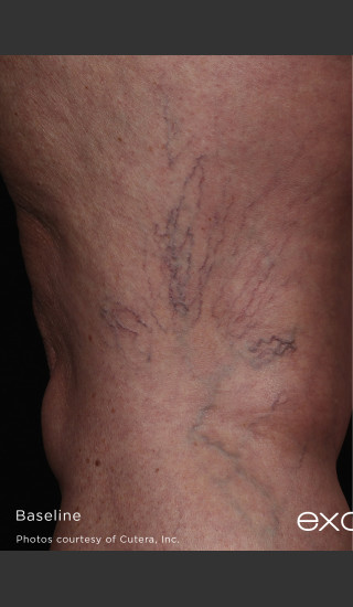 Before Photo for Back of Thigh Leg Vein Clearance  -  - Prejuvenation