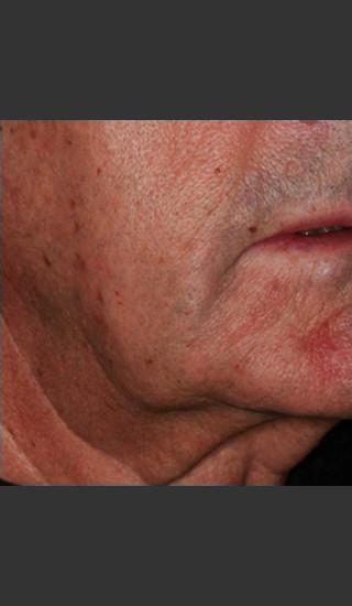 Before Photo for Infini Rhytides Treatment #18 -  - Prejuvenation
