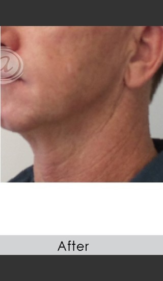 After Photo for Male Jawline Enhancement with Radiesse - Annie Chiu, MD - Prejuvenation