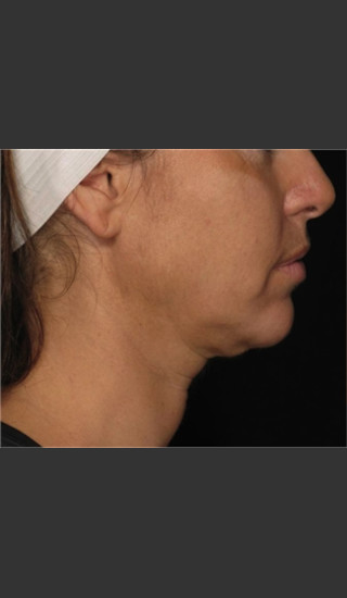 Before Photo for Treatment of Neck with Laser Liposuction -  - Prejuvenation