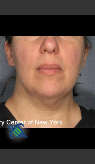 After Photo for Laser Liposuction Submental Fat Treatment - Roy G. Geronemus, M.D. - Prejuvenation