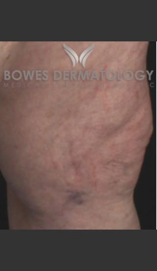 After Photo for Spider Vein Treatment - Leyda Elizabeth Bowes, M.D. - Prejuvenation