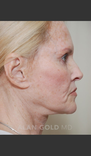 Before Photo for Rhytidectomy (Facelift) 1753 Side View - Alan Gold MD - Prejuvenation