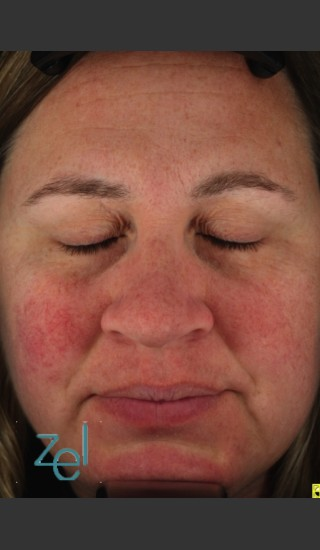 Before Photo for Treatment of Facial Redness  - Brian D. Zelickson, M.D. - Prejuvenation