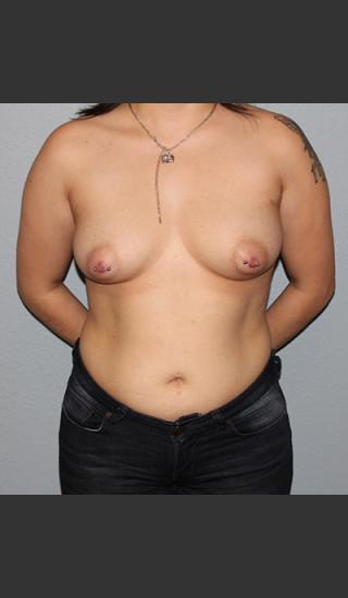 Before Photo for Breast Augmentation Case #1 - Bryan J. Correa, MD - Prejuvenation