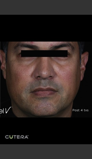 After Photo for Skin Revitalization of Male Face Before & After Photo -  - Prejuvenation