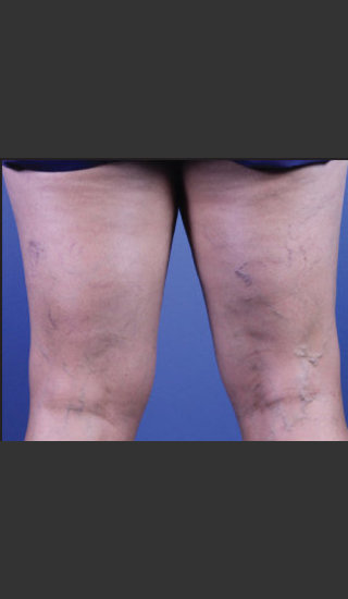 Before Photo for Sclerotherapy Treatment for Varicose Veins - Daniel Friedmann  - Prejuvenation