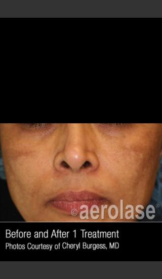 Before Photo for Treatment of Melasma #318 -  - Prejuvenation