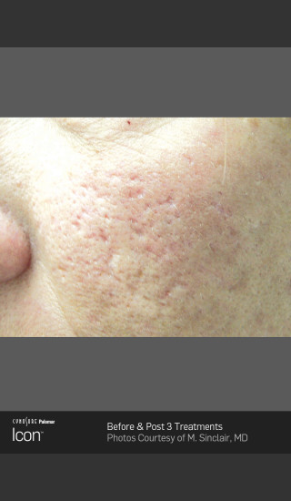 Before Photo for Acne Scaring on the Cheeks -  - Prejuvenation