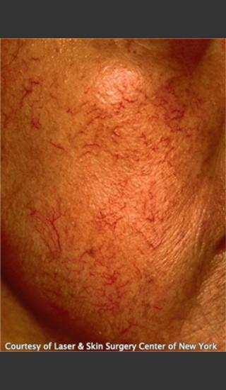 Before Photo for Treatment of Facial Redness -  - Prejuvenation