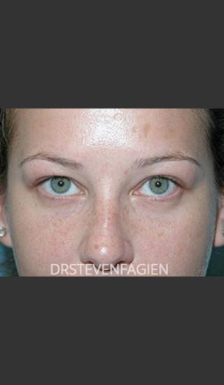 After Photo for Lower Eyelid Fat Removal - Patient 4 - Steven Fagien, MD - Prejuvenation