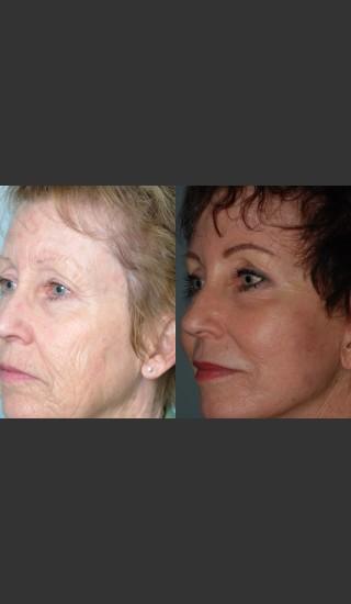 After Photo for Full Face Rejuvenation - Mark B. Taylor, M.D. - Prejuvenation
