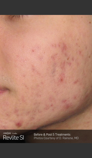 Before Photo for Revlite SI Treatment of Facial  Acne Scarring -  - Prejuvenation