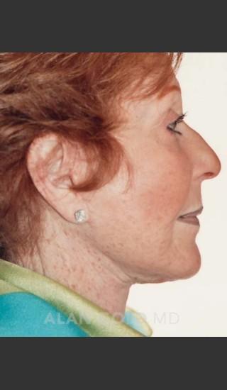 After Photo for Rhytidectomy (Facelift) 161 Side View - Alan Gold MD - Prejuvenation
