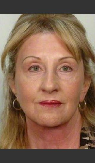 After Photo for 61 year old woman treated with Facelift - R. Scott Yarish MD, FACS - Prejuvenation
